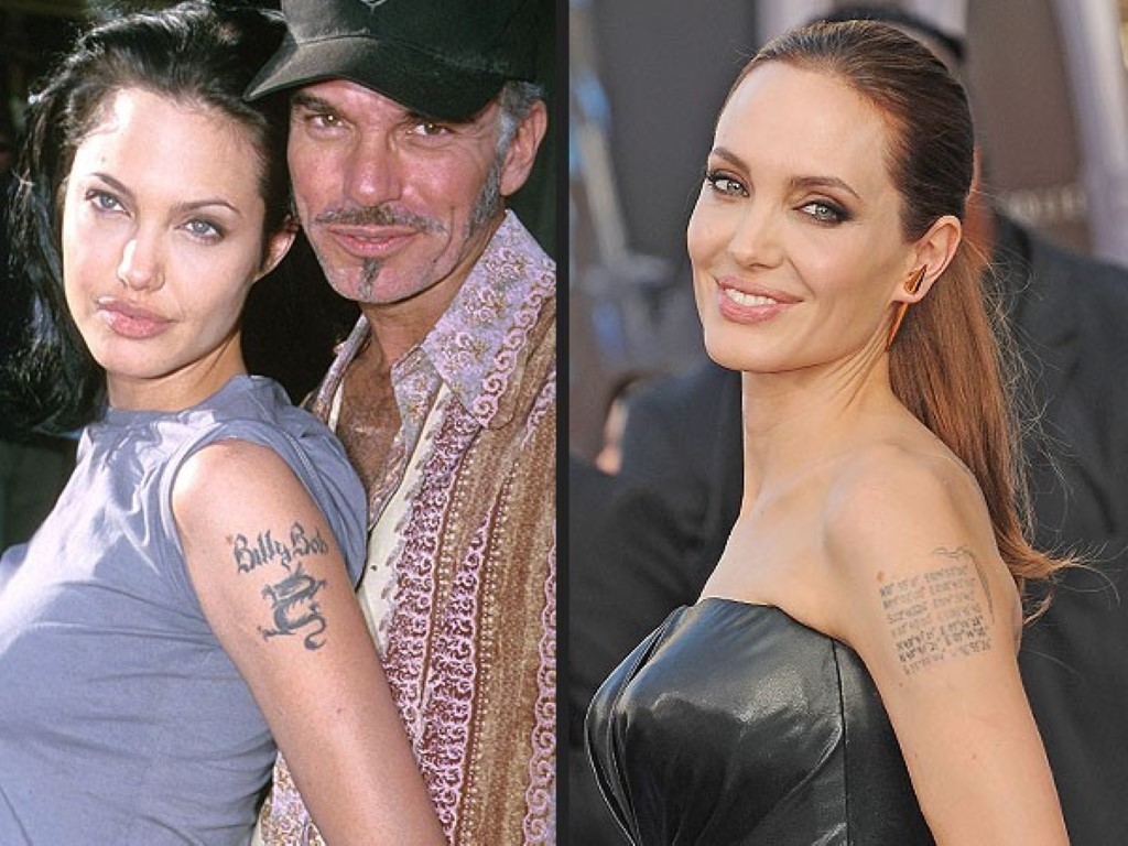 Megan Fox Tattoo Removal Before And After Georges Blog