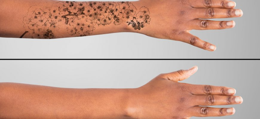 laser tattoo removal calgary