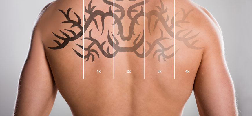 laser-tattoo-removal-calgary