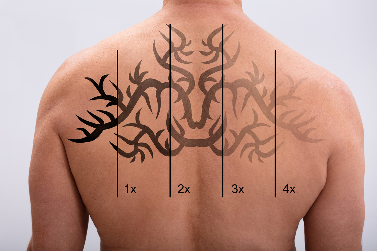 Laser Tattoo Removal On Man's Back