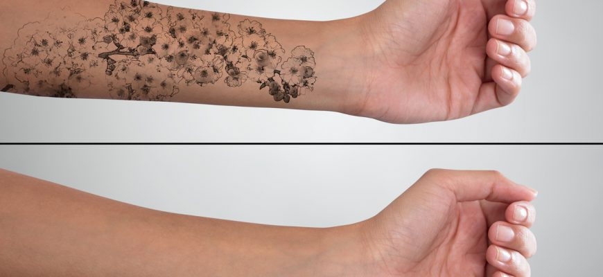 Woman's Hand Before And After Laser Tattoo Removal