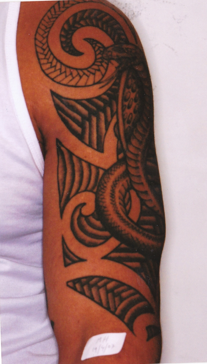 New canvas gallery of laser tattoo removal clients for New tattoo removal