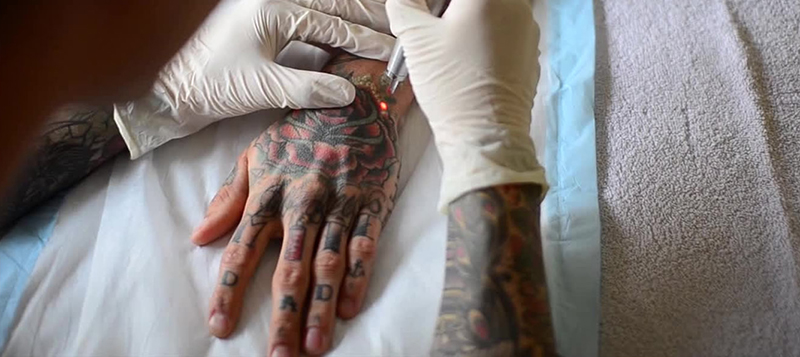 New Canvas Laser Tattoo Removal Calgary
