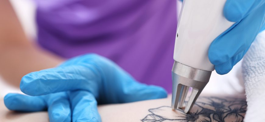 Laser tattoo removal in cosmetic surgery.