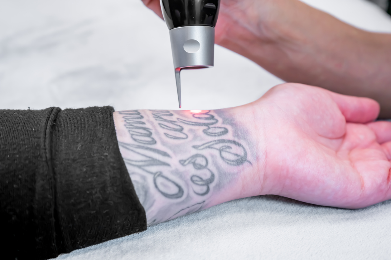 Laser tattoo removal of a large tattoo on a patient's arm, using picosecond laser technology, in a beauty and medical laser clinic. Technician is holding the hand piece.